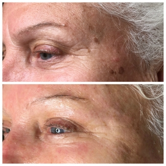 Elimination of Pigment Spots and Frown Lines