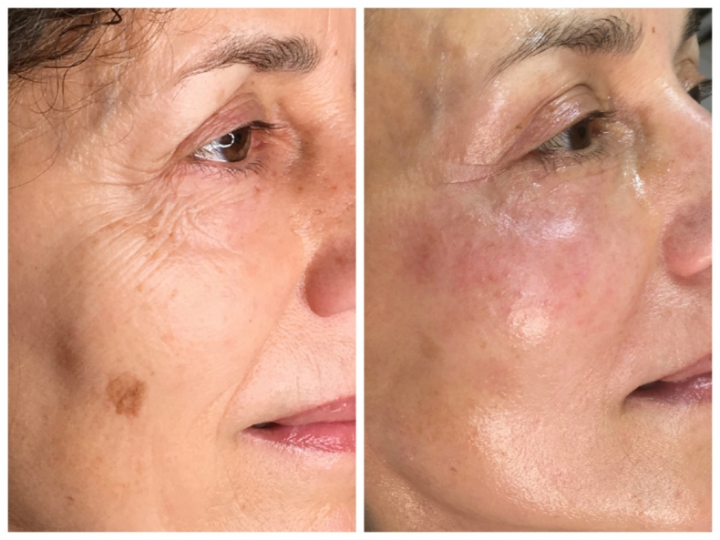 Facelifting - before/after