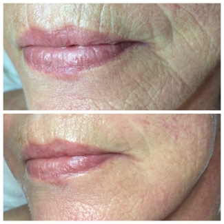 Tightening and Smoothing of Mouth Wrinkles